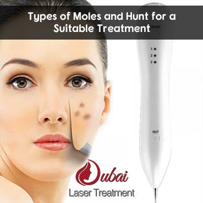 Types of Moles and Hunt for a Suitable Treatment