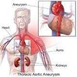 Thoracic Aneurysm : symptoms and treatment - Posts - Quora