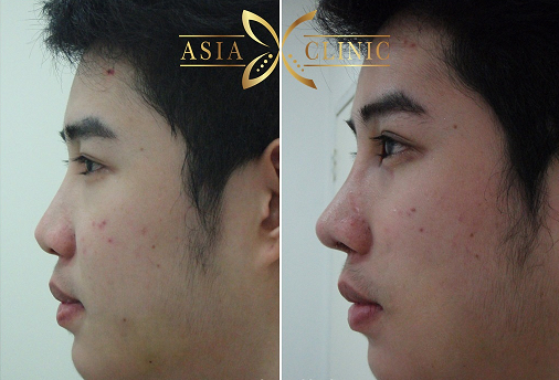 Rhinoplasty Reduction Photos In Thailand - Asia Clinic-Cosmetic