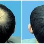 obat rambut rontok