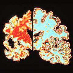 Alzheimer: échec d'un médicament testé avec 2500 personnes