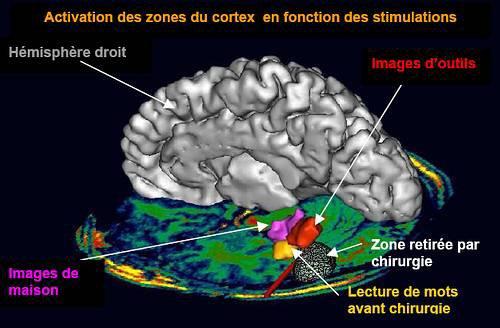 Que ce passe-t-il dans notre cerveau lorsque nous lisons?