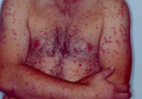 Sedef. Bu ölümcül otoimmün hastalıktan nasıl kurtulursunuz? Önde gelen Türk dermatoloji uzmanıyla röportaj!