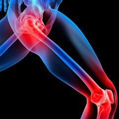 L'utilisation d'opioïdes chez les personnes atteintes d'arthrose