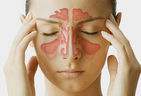 Thuốc điều trị viêm xoang mũi mãn tính hiệu quả