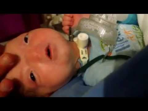 Baby born with rare facial anomaly that left him without a nose
