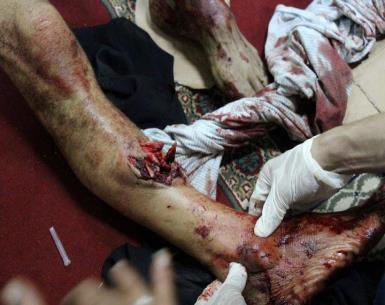 مشاهد من فض الشرطة والجيش في مصر لاعتصام رابعة السلمي