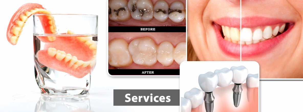 dentist in hinjewadi pune