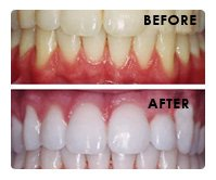 Comprehensive Solutions for Your Cosmetic Dental Needs