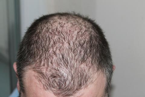 Stop Hair Loss and Regrow Hair