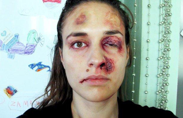 Une femme battue se prend chaque jour en photo pendant un an   MinuteBuzz
