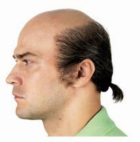 Hair Loss Types in Men : Hair Loss Types in Men