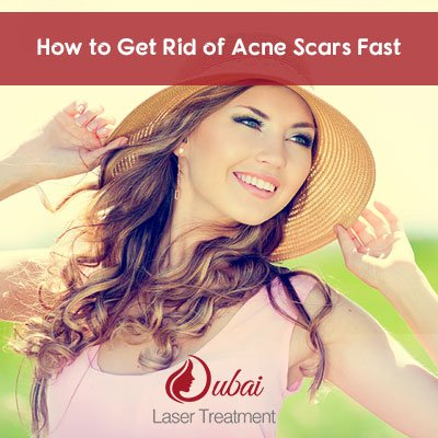 How to Get Rid of Acne Scars Fast?