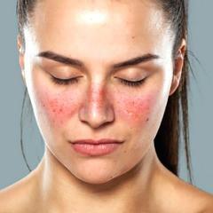 Lupus: un risque accru lié aux traumatismes