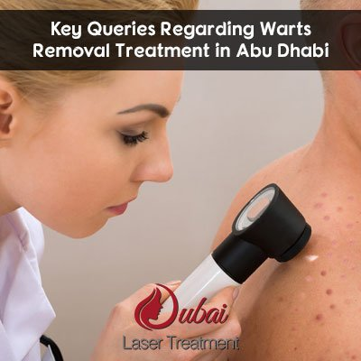 Key Queries Regarding Warts Removal Treatment in Abu Dhabi