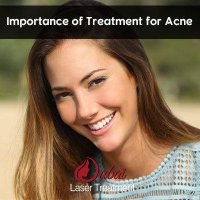 Acne Treatment: Importance of Treatment for Acne