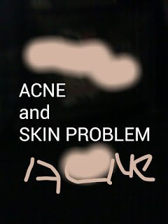 Science and culture: Acne