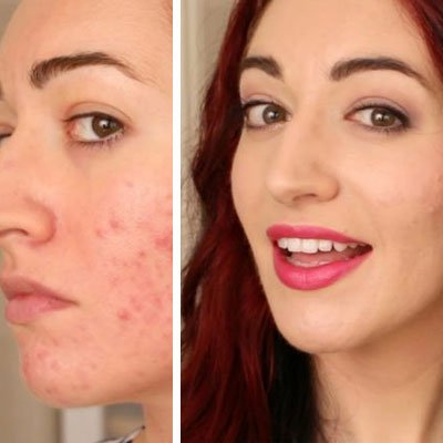 Acne Scar Treatment in Dubai, Sharjah & Abu Dhabi | Laserskincare