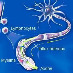 Sclérose en plaques: nouvelle piste de traitement visant la réparation de la myéline