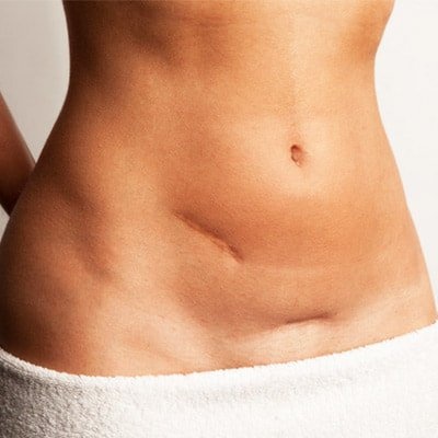 Removing the Surgical Scars - The Easiest Way