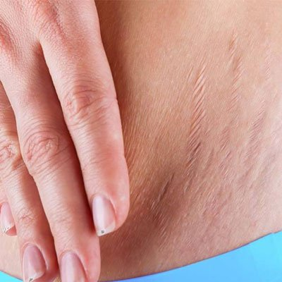 Stretch Marks Treatment – Is There Any Formula to Treat Such Marks