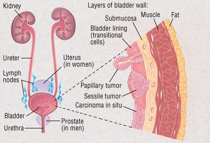 Is Your Bladder Pain a UTI or Bladder Cancer? Look for THESE Warning Signs - Healthy Food Society