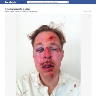 Agression homophobe : Ils ont frappé ma tête, comme un ballon de foot