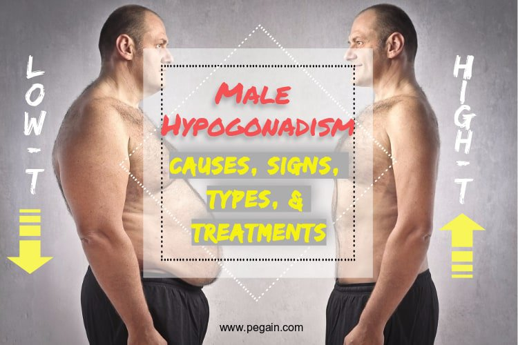 Male Hypogonadism: Causes, Symptoms and Treatments