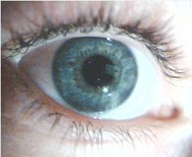 c'est mon oeil, eh ouiiii