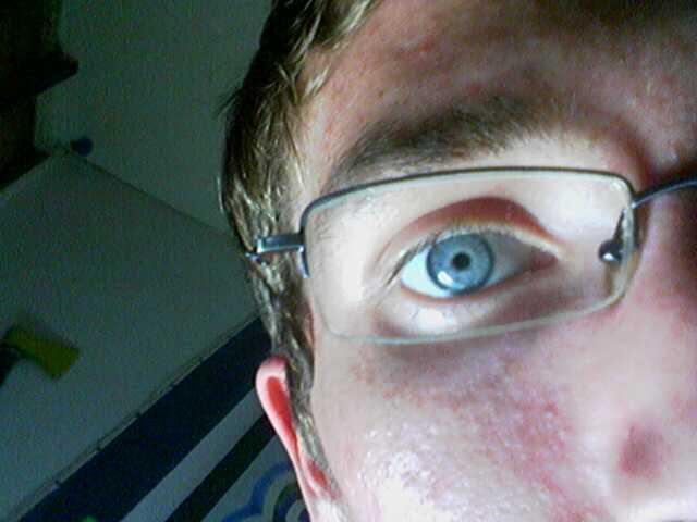 My blue eye lol