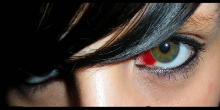 éémoragie oculaire